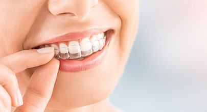 Invisalign | Northgate Dental Centre